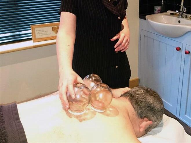 https://janecarrolltherapies.com/wp-content/uploads/2016/08/JCT_cupping_treatment.jpg